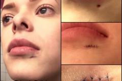 rimozione cicatrice