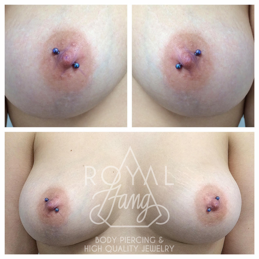 Female nipples